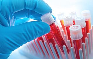 Вальденстрема макроглобулинемия лейкоз